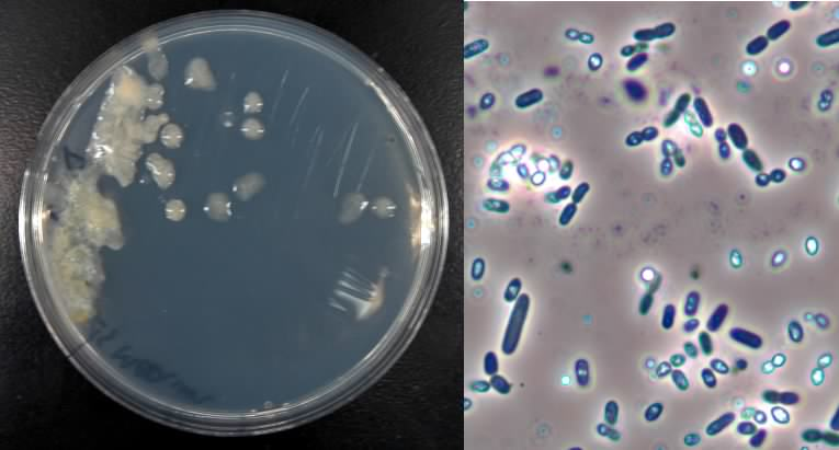 Azotobacter Beneficial Microbes